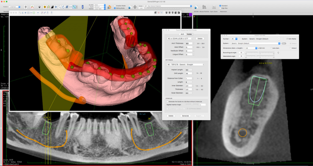 Dental3DPlugin
