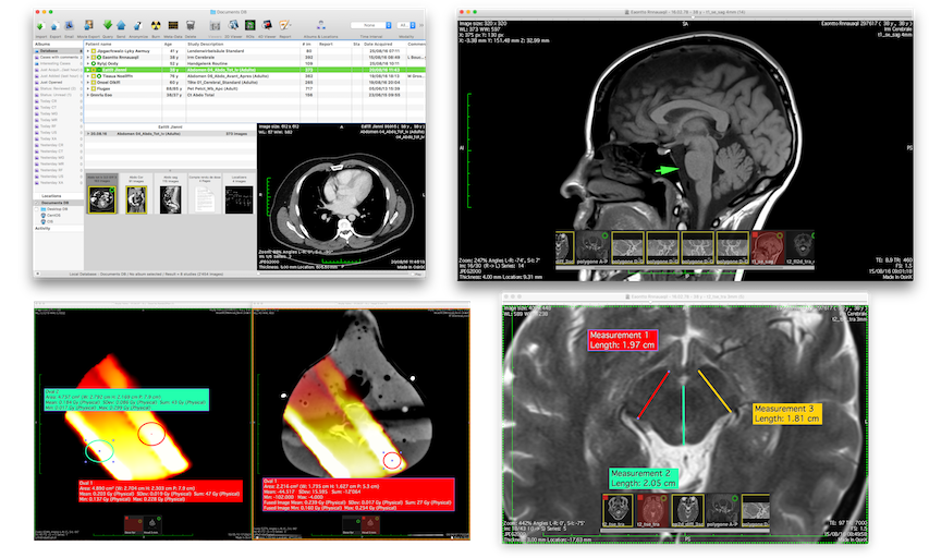 OsiriX-- PACS and DICOM Viewer | Integrity Medical