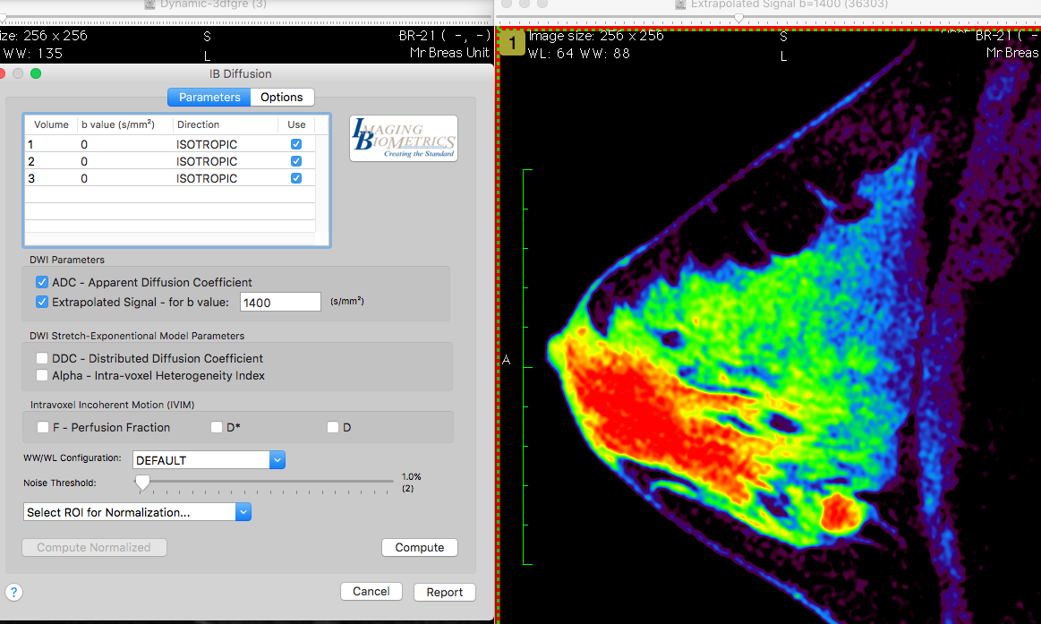 Osirix Dicom Viewer Plugins Comprehensive Design Troubleshooting Anatomy Of A Mac Ib Diffusion