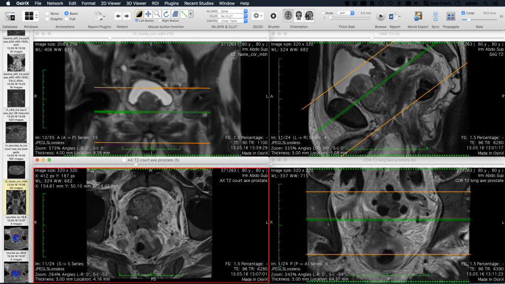 OsiriX screenshot