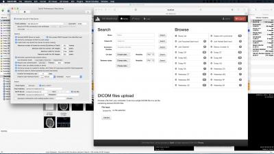 OsiriX DICOM Viewer | OsiriX MD