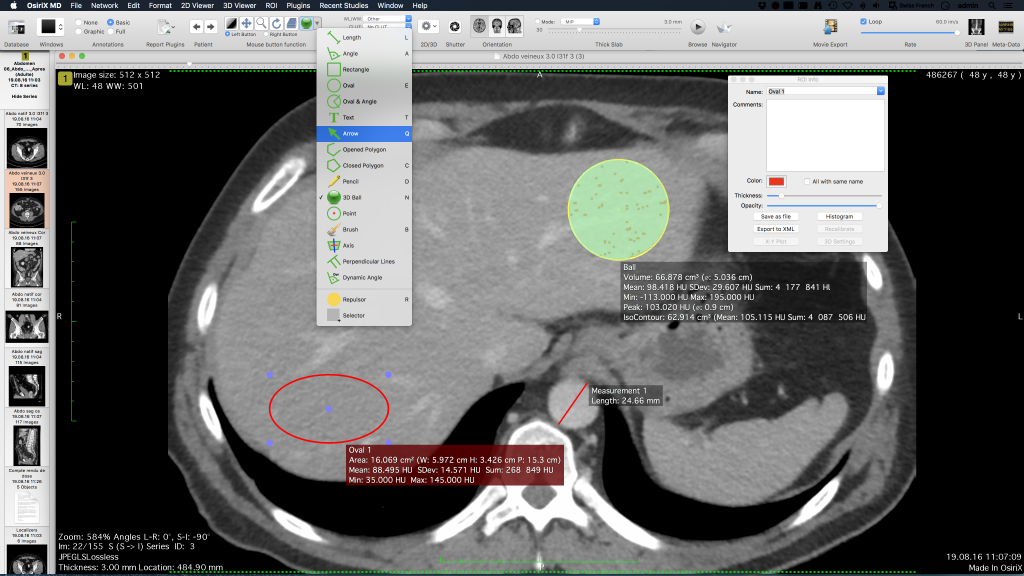 OsiriX DICOM Viewer | OsiriX MD